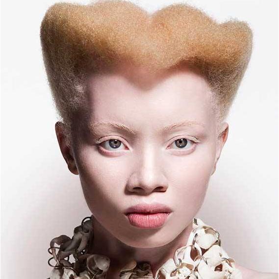 Thando Hopa - albinism